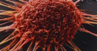 Artificial intelligence from Microsoft will help to treat cancer