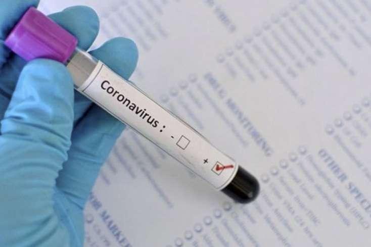 İranda son sutkada 78 nəfər koronavirusdan öldü
