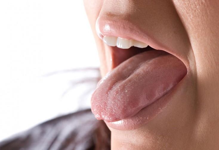 DİQQƏT: dilinizin altındakı şişlər xərçəngdən xəbər verir