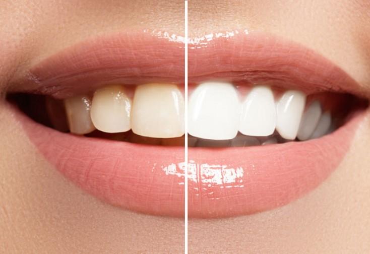 Dişləri ağartmaq üçün təbii üsullar