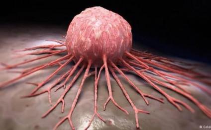 Քաղցկեղը կարելի է կանխարգելել մինչ դրա ի հայտ գալը