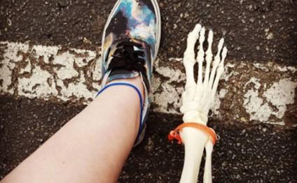 """Amputasiya edilmiş ayağı üçün """"İntagram""""da səhifə açdı"""